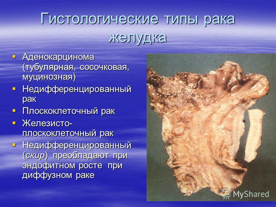 Гистологические типы рака желудка Аденокарцинома (тубулярная, сосочковая, муцинозная) Аденокарцинома (тубулярная, сосочковая, муцинозная) Недифференцированный рак Недифференцированный рак Плоскоклеточный рак Плоскоклеточный рак Железисто- плоскоклето
