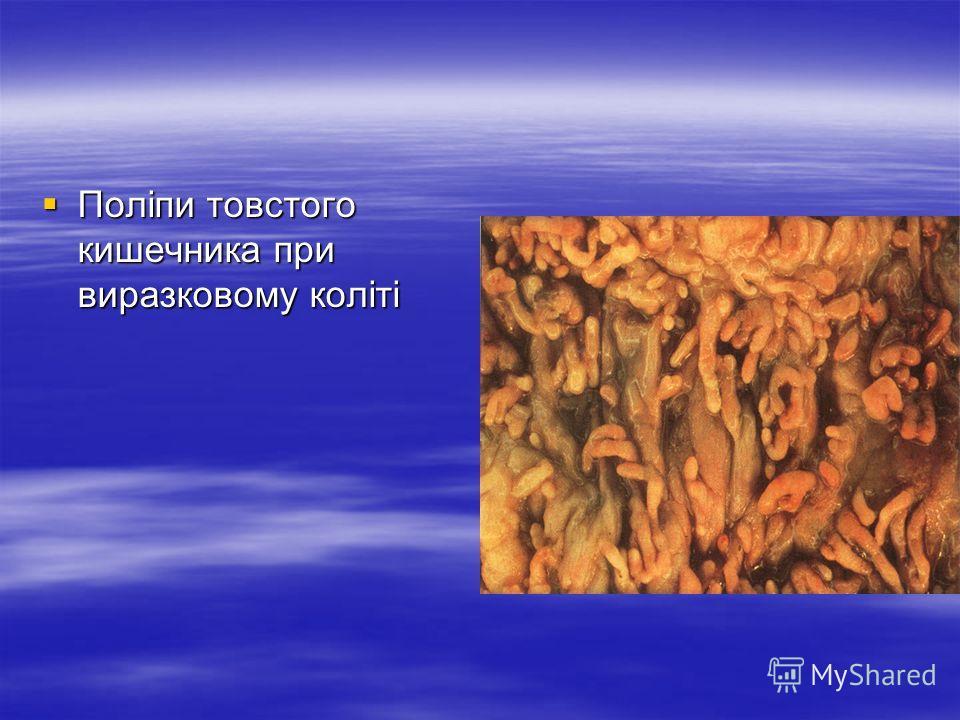 Поліпи товстого кишечника при виразковому коліті Поліпи товстого кишечника при виразковому коліті
