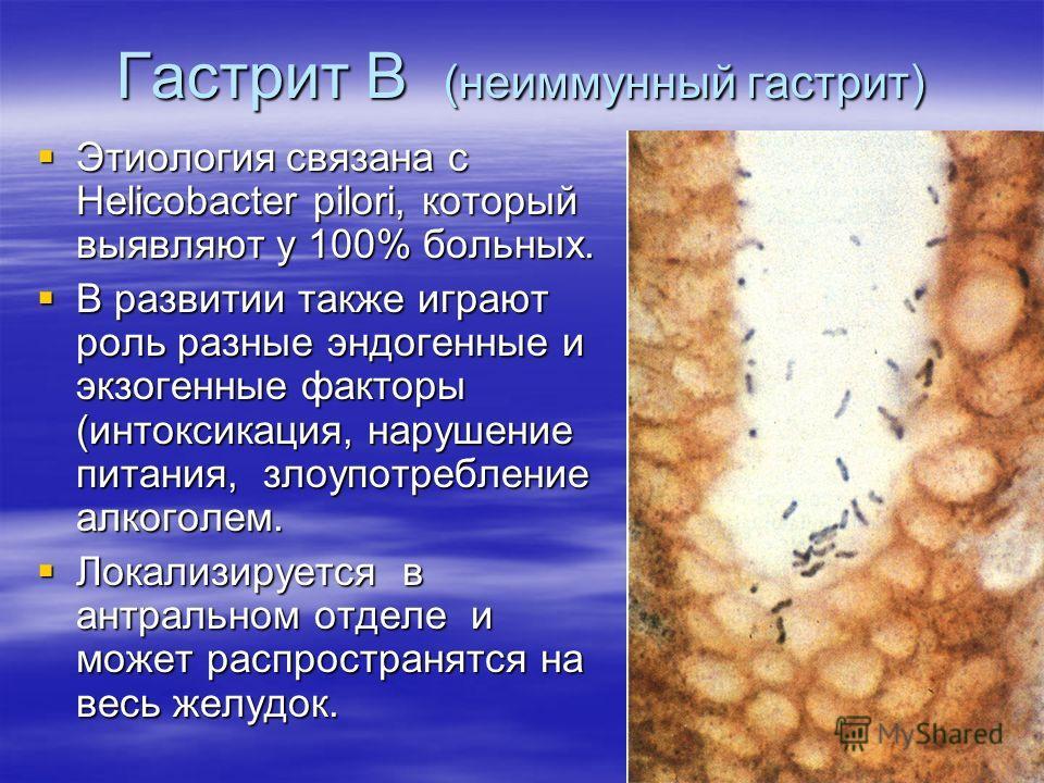 Гастрит В (неиммунный гастрит) Этиология связана с Helicobacter pilori, который выявляют у 100% больных. Этиология связана с Helicobacter pilori, который выявляют у 100% больных. В развитии также играют роль разные эндогенные и экзогенные факторы (ин