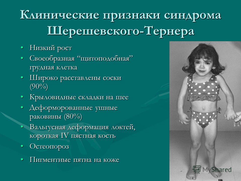 Клинические признаки синдрома Шерешевского-Тернера Низкий ростНизкий рост Своеобразная щитоподобная грудная клеткаСвоеобразная щитоподобная грудная клетка Широко расставлены соски (90%)Широко расставлены соски (90%) Крыловидные складки на шееКрыловид