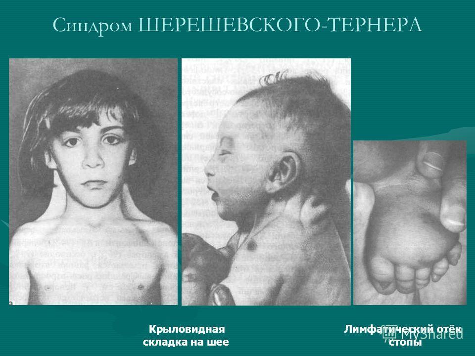 Синдром ШЕРЕШЕВСКОГО-ТЕРНЕРА Крыловидная Лимфатический отёк складка на шее стопы