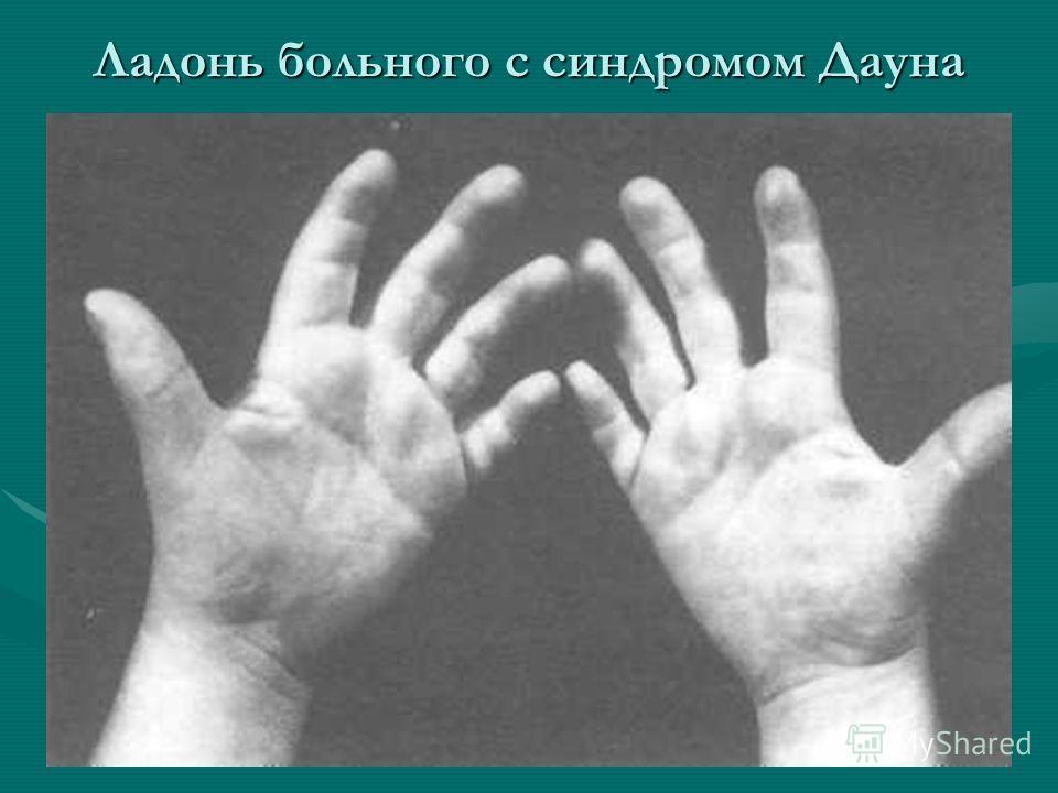 Ладонь больного с синдромом Дауна