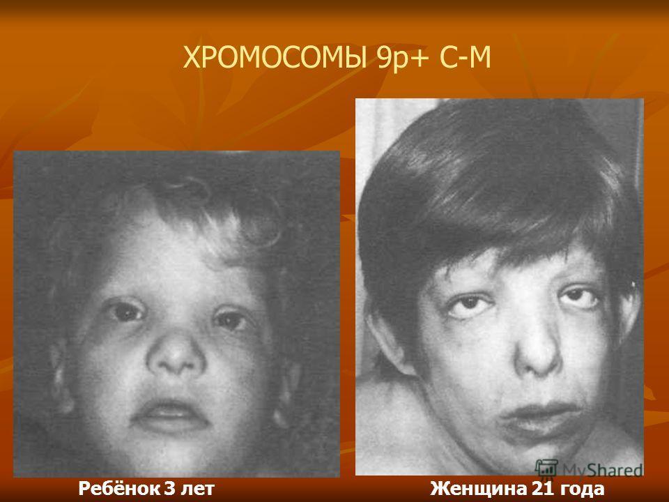 Ребёнок 3 летЖенщина 21 года ХРОМОСОМЫ 9р+ С-М