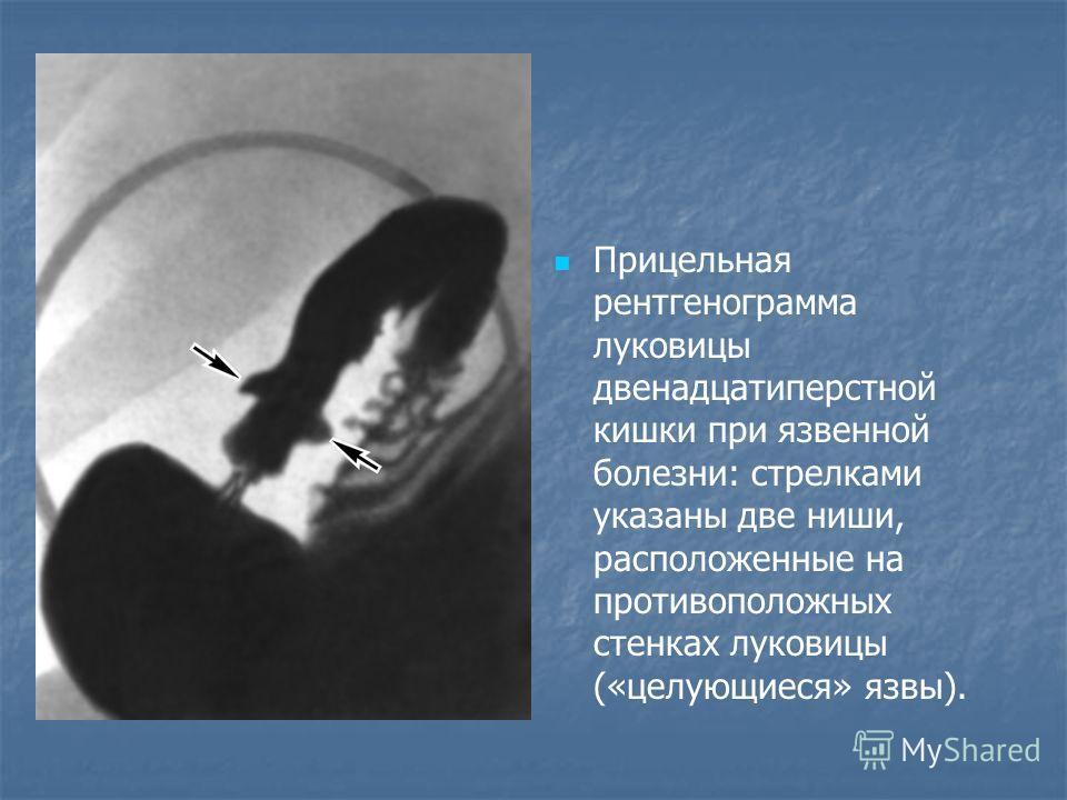 Прицельная рентгенограмма луковицы двенадцатиперстной кишки при язвенной болезни: стрелками указаны две ниши, расположенные на противоположных стенках луковицы («целующиеся» язвы).