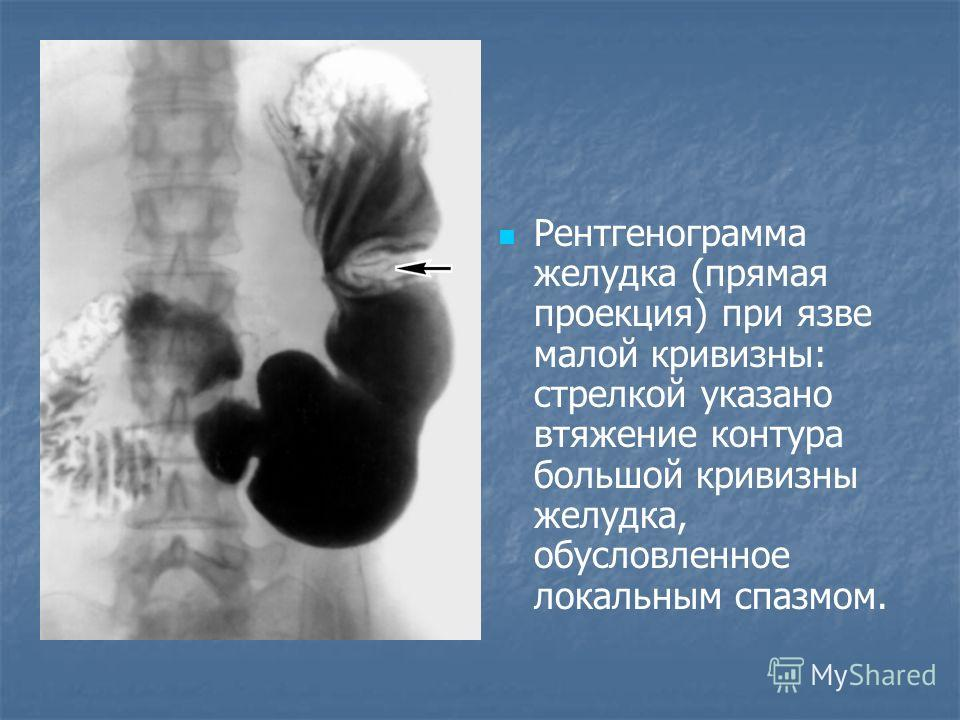 Рентгенограмма желудка (прямая проекция) при язве малой кривизны: стрелкой указано втяжение контура большой кривизны желудка, обусловленное локальным спазмом.