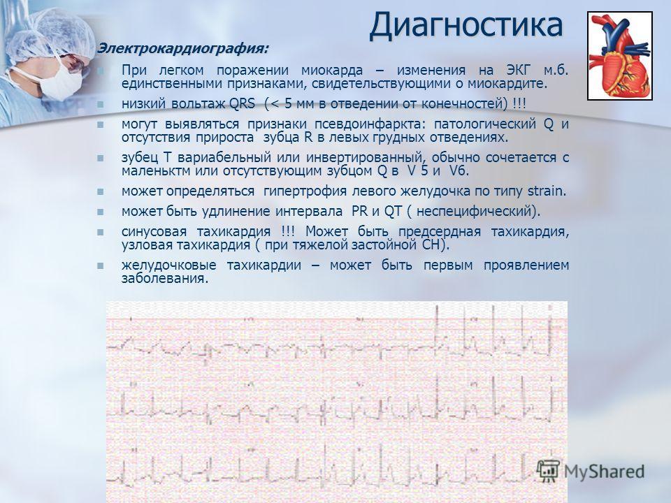 ДиагностикаЭлектрокардиография: При легком поражении миокарда – изменения на ЭКГ м.б. единственными признаками, свидетельствующими о миокардите. низкий вольтаж QRS (< 5 мм в отведении от конечностей) !!! могут выявляться признаки псевдоинфаркта: пато