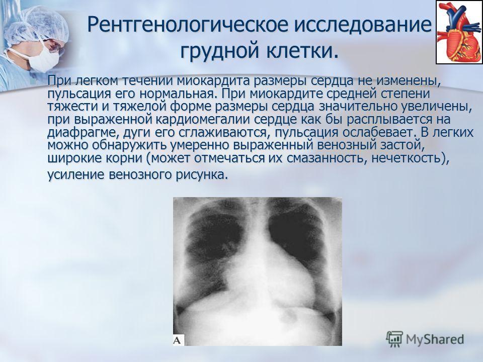 Рентгенологическое исследование грудной клетки. При легком течении миокардита размеры сердца не изменены, пульсация его нормальная. При миокардите средней степени тяжести и тяжелой форме размеры сердца значительно увеличены, при выраженной кардиомега