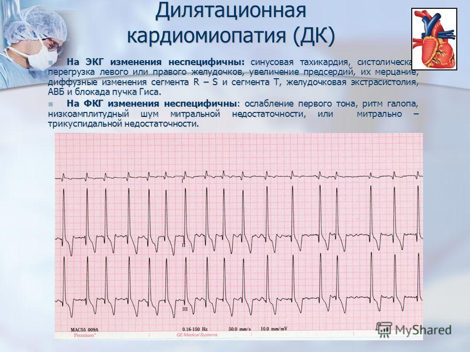 На ЭКГ изменения неспецифичны: синусовая тахикардия, систолическая перегрузка левого или правого желудочков, увеличение предсердий, их мерцание, диффузные изменения сегмента R – S и сегмента Т, желудочковая экстрасистолия, АВБ и блокада пучка Гиса. Н