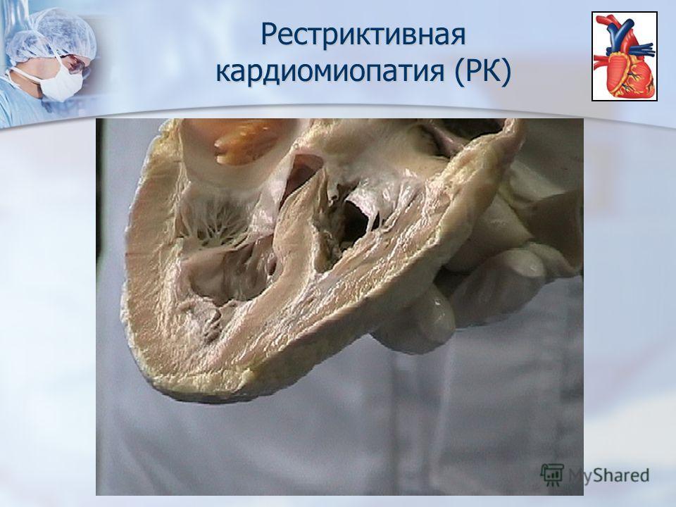 Рестриктивная кардиомиопатия (РК)
