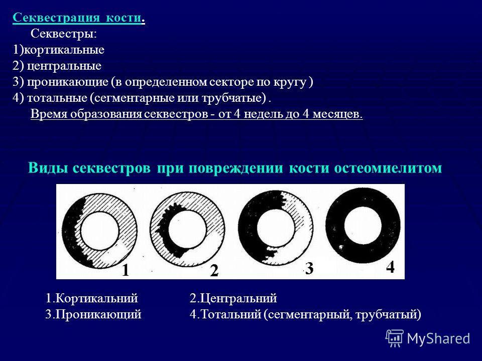 Секвестрация кости. Секвестры: 1)кортикальные 2) центральные 3) проникающие (в определенном секторе по кругу ) 4) тотальные (сегментарные или трубчатые). Время образования секвестров - от 4 недель до 4 месяцев. Виды секвестров при повреждении кости о