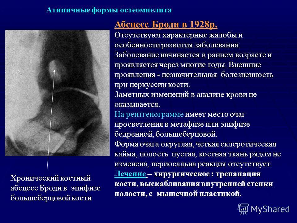 Абсцесс Броди в 1928р. Отсутствуют характерные жалобы и особенности развития заболевания. Заболевание начинается в раннем возрасте и проявляется через многие годы. Внешние проявления - незначительная болезненность при перкуссии кости. Заметных измене