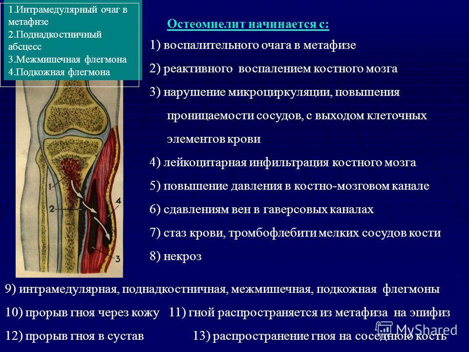 Остеомиелит начинается с: 1) воспалительного очага в метафизе 2) реактивного воспалением костного мозга 3) нарушение микроциркуляции, повышения проницаемости сосудов, с выходом клеточных элементов крови 4) лейкоцитарная инфильтрация костного мозга 5)