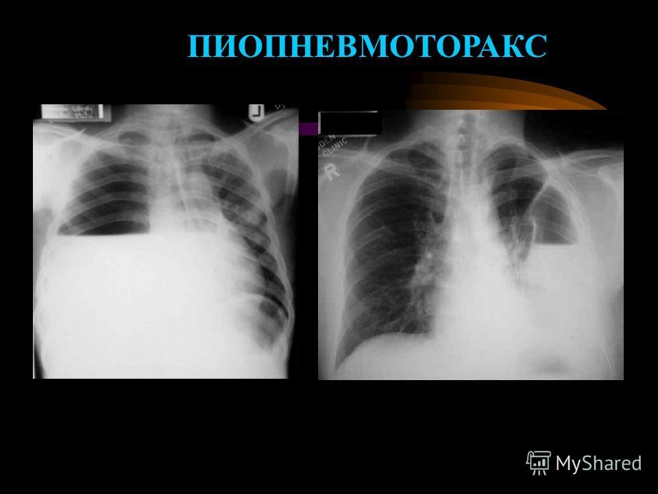 Пиопневмоторакс фото