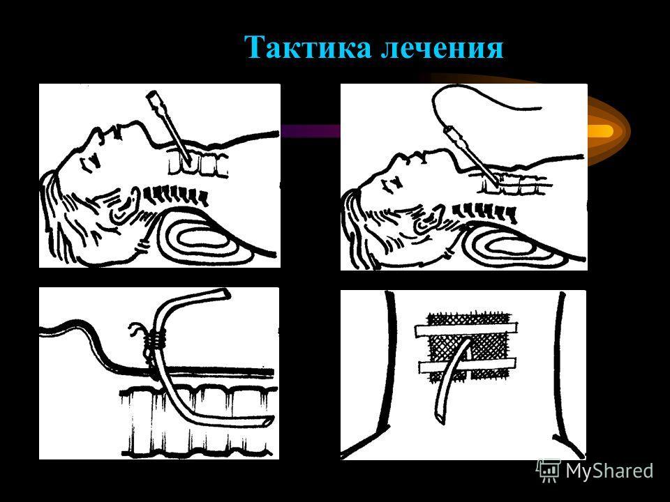 Тактика лечения