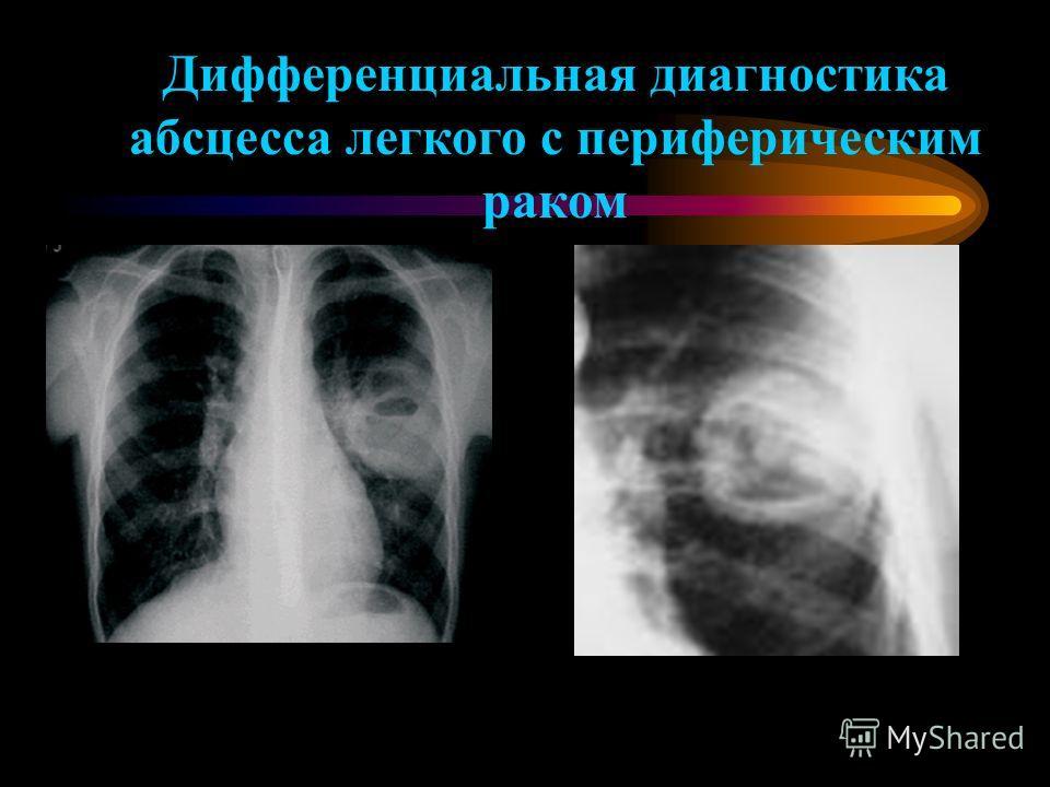 Дифференциальная диагностика абсцесса легкого с периферическим раком