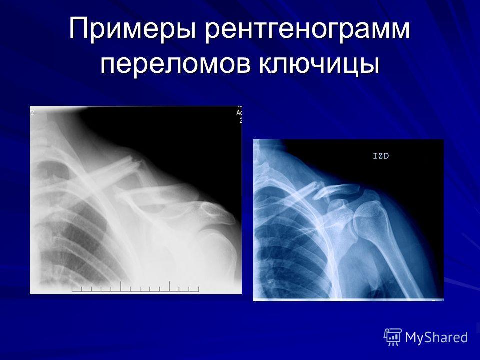 Хирургическое лечение тазобедренных суставов