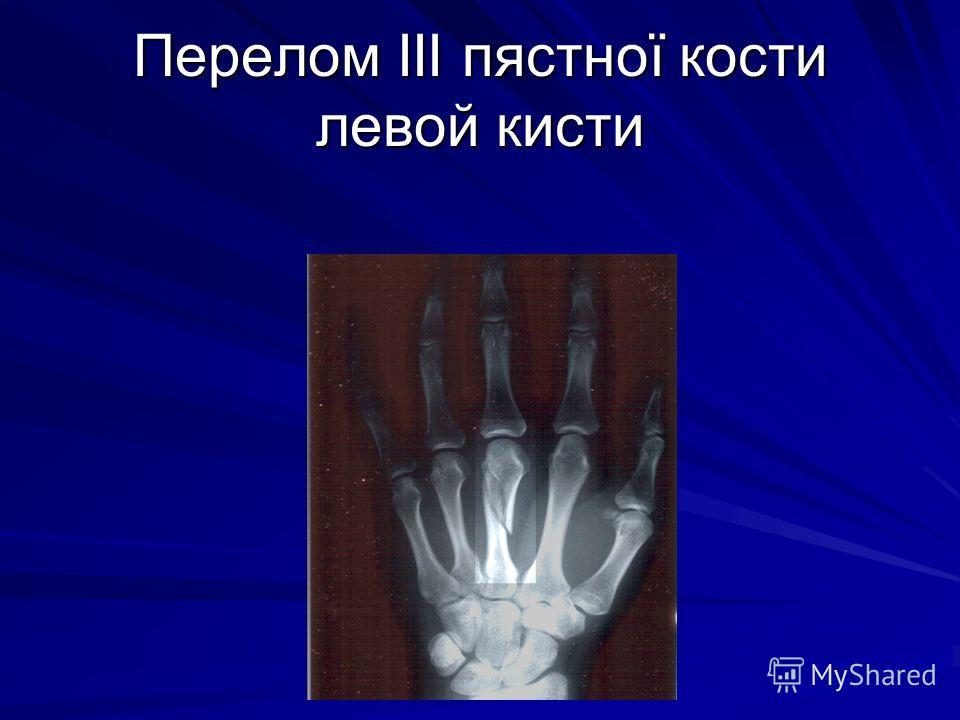 Перелом III пястної кости левой кисти