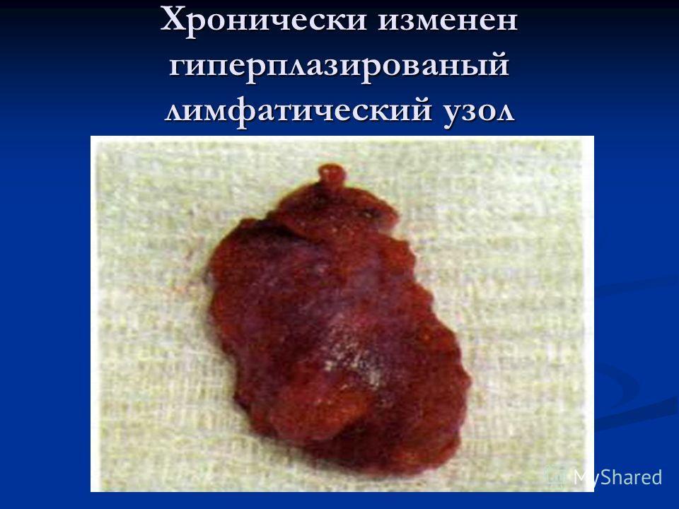 Хронически изменен гиперплазированый лимфатический узол