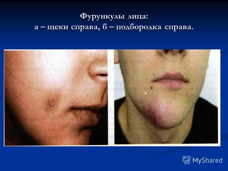 Фурункулы лица: а – щеки справа, б – подбородка справа.