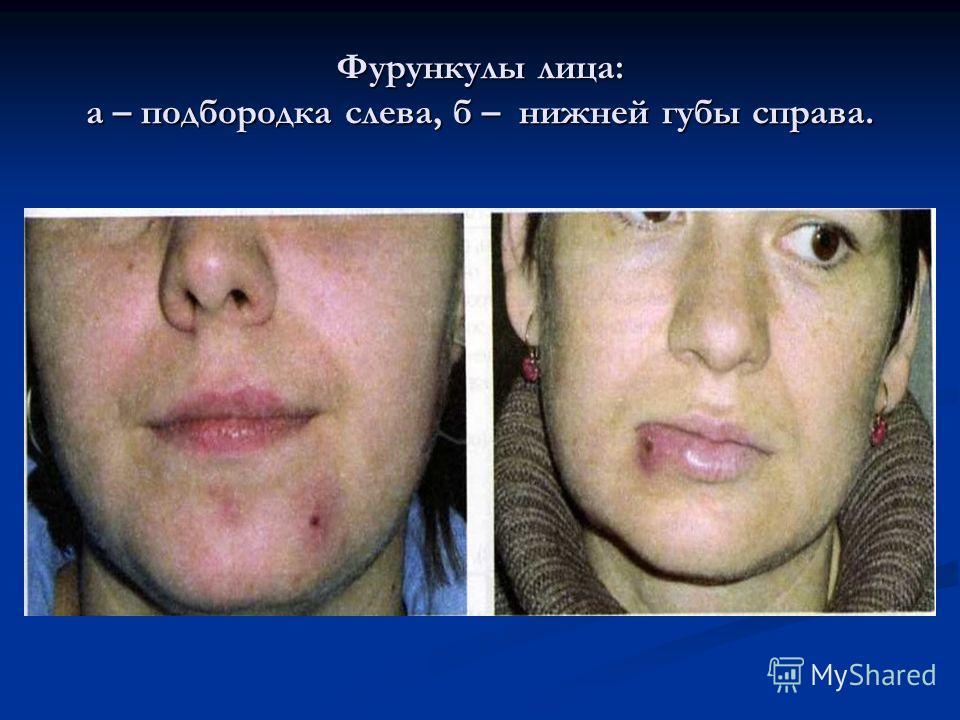 Фурункулы лица: а – подбородка слева, б – нижней губы справа.
