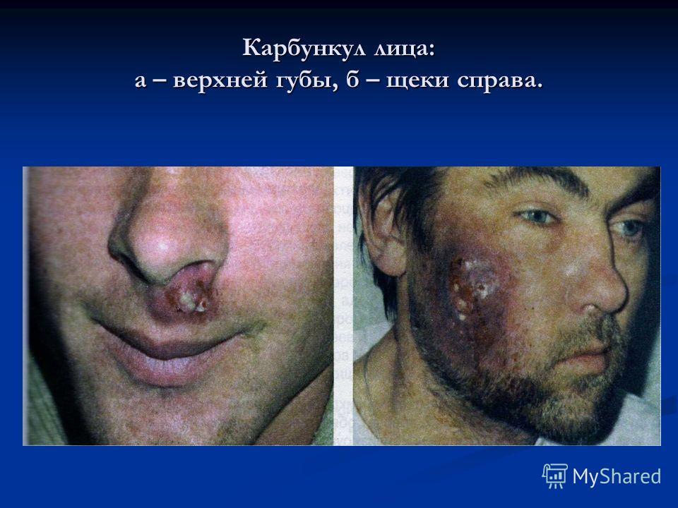 Карбункул лица: а – верхней губы, б – щеки справа.