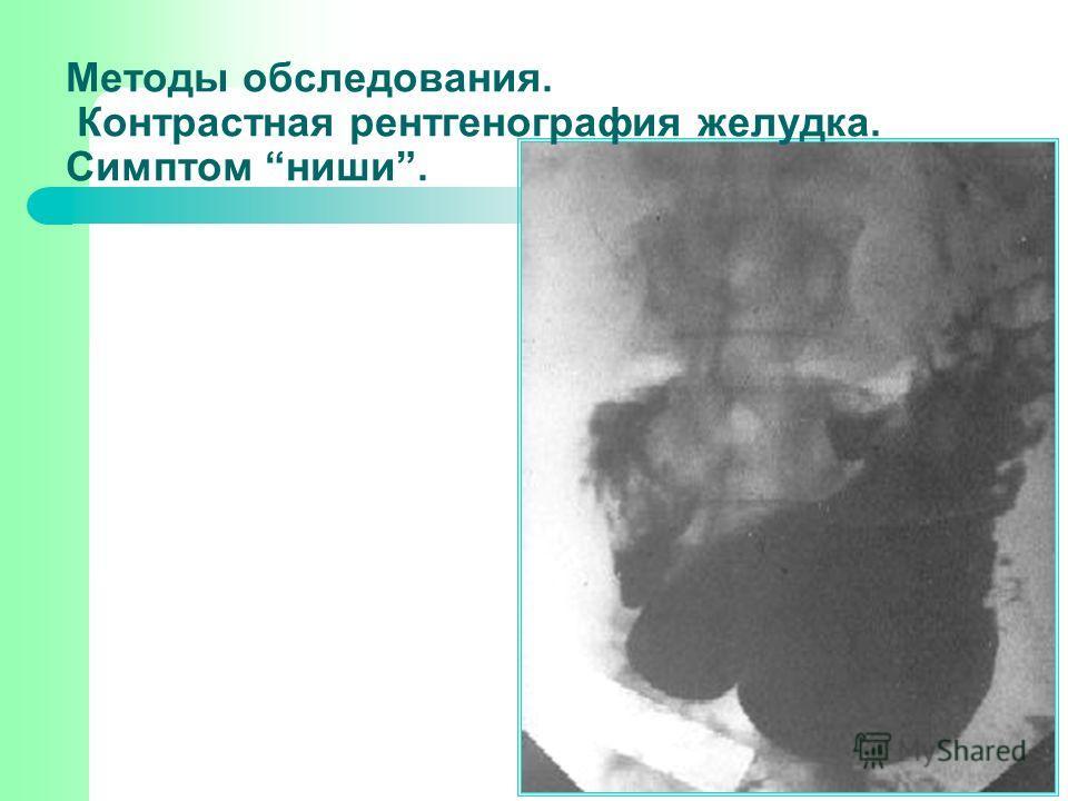 Методы обследования. Контрастная рентгенография желудка. Симптом ниши.