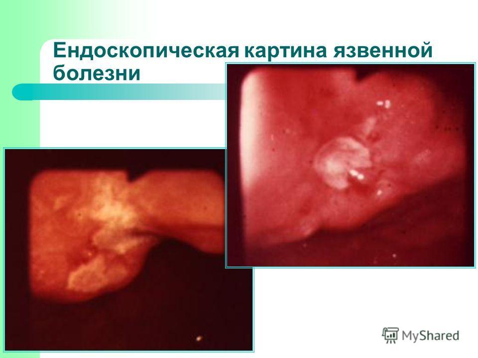 Ендоскопическая картина язвенной болезни