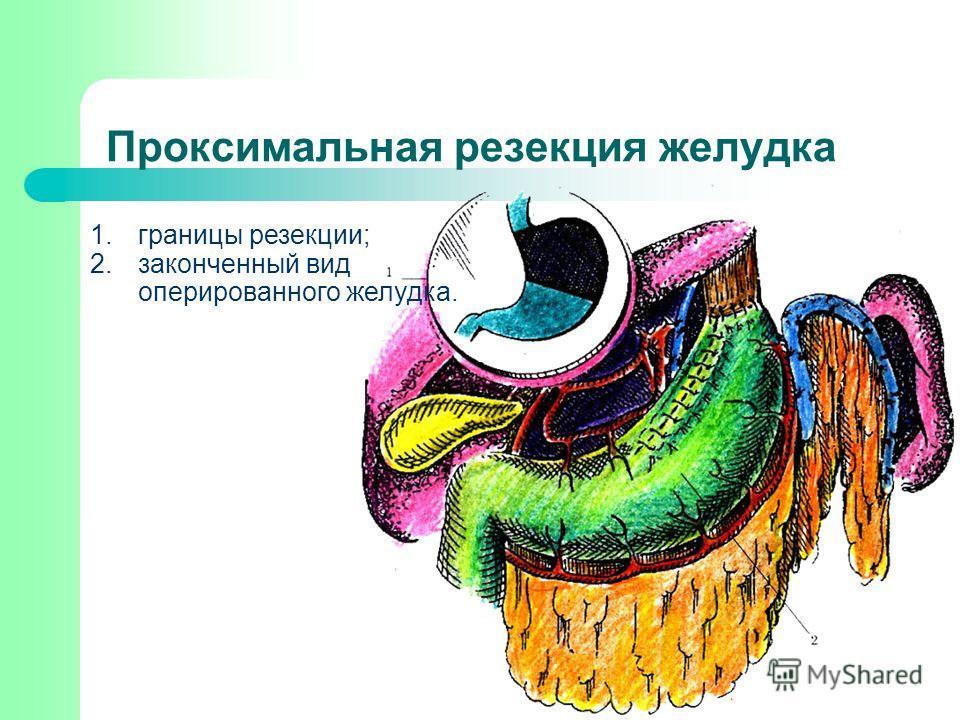 Проксимальная резекция желудка 1.границы резекции; 2.законченный вид оперированного желудка.