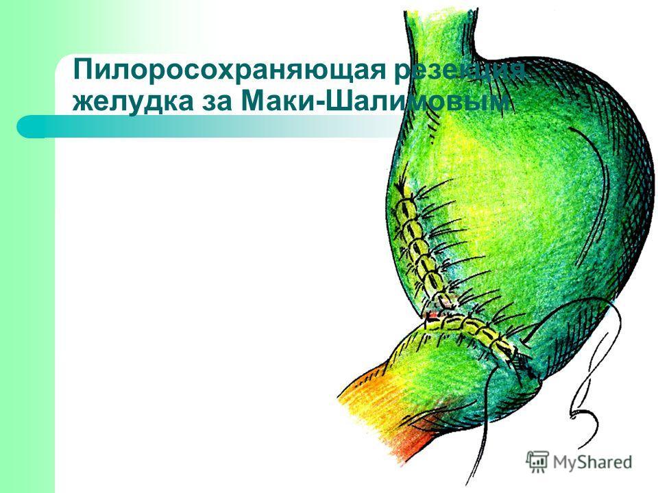 Пилоросохраняющая резекция желудка за Маки-Шалимовым