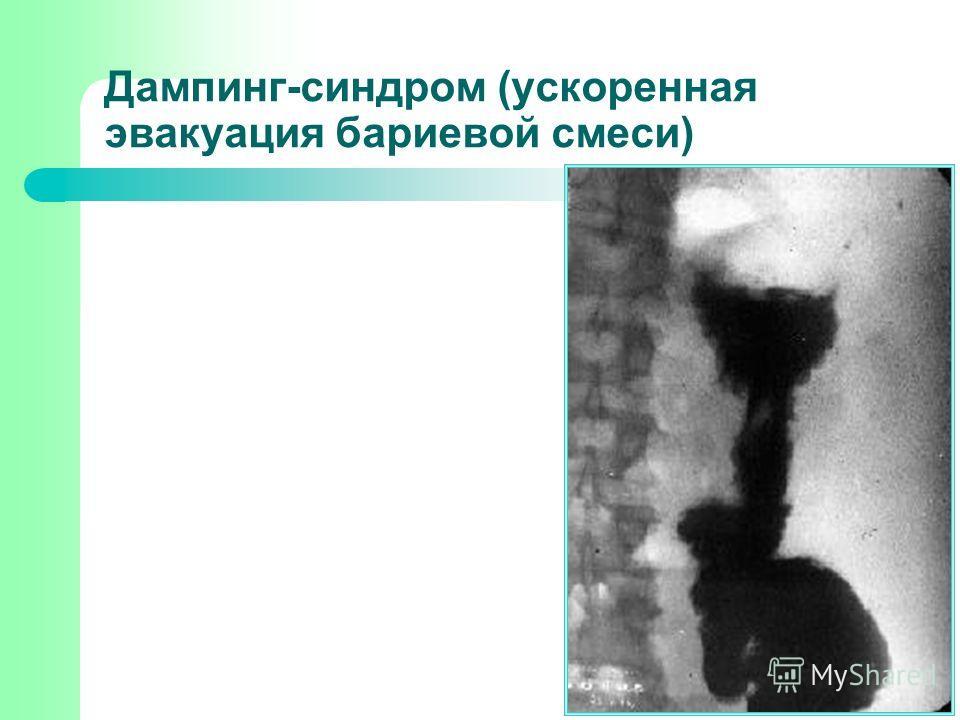 Дампинг-синдром (ускоренная эвакуация бариевой смеси)