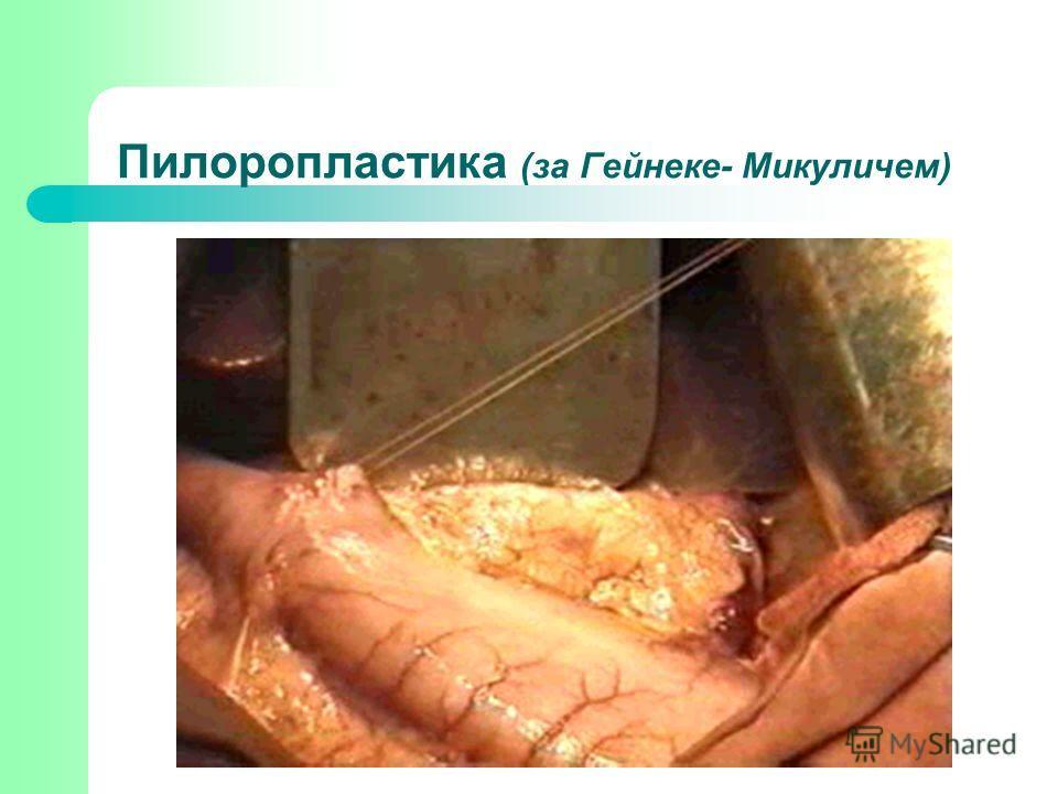 Пилоропластика (за Гейнеке- Микуличем)