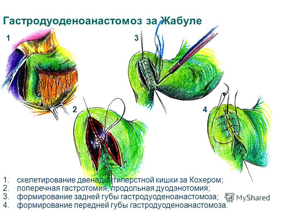 Гастродуоденоанастомоз за Жабуле 1 24 3 1.скелетирование двенадцятиперстной кишки за Кохером; 2.поперечная гастротомия, продольная дуодэнотомия; 3.формирование задней губы гастродуоденоанастомоза; 4.формирование передней губы гастродуоденоанастомоза.