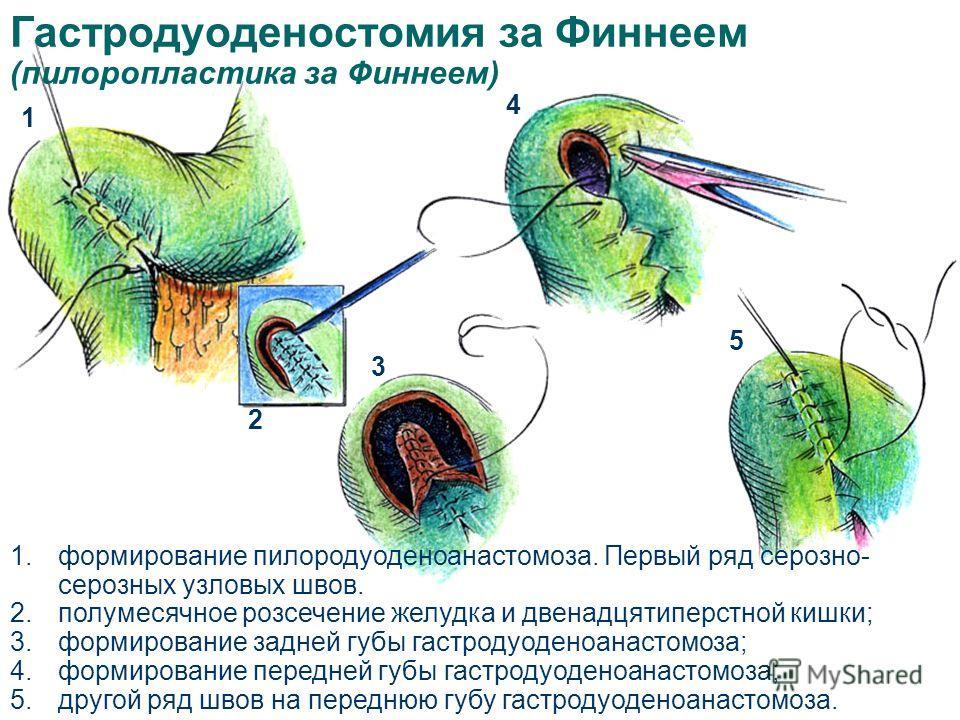 1.формирование пилородуоденоанастомоза. Первый ряд серозно- серозных узловых швов. 2.полумесячное розсечение желудка и двенадцятиперстной кишки; 3.формирование задней губы гастродуоденоанастомоза; 4.формирование передней губы гастродуоденоанастомоза;