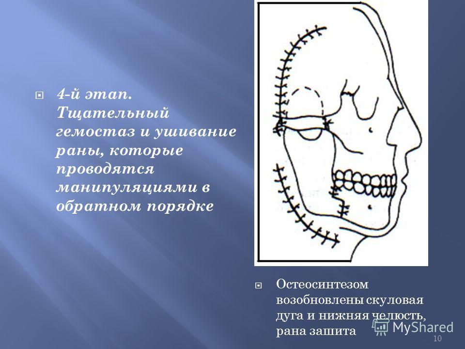 10 4-й этап. Тщательный гемостаз и ушивание раны, которые проводятся манипуляциями в обратном порядке Остеосинтезом возобновлены скуловая дуга и нижняя челюсть, рана зашита