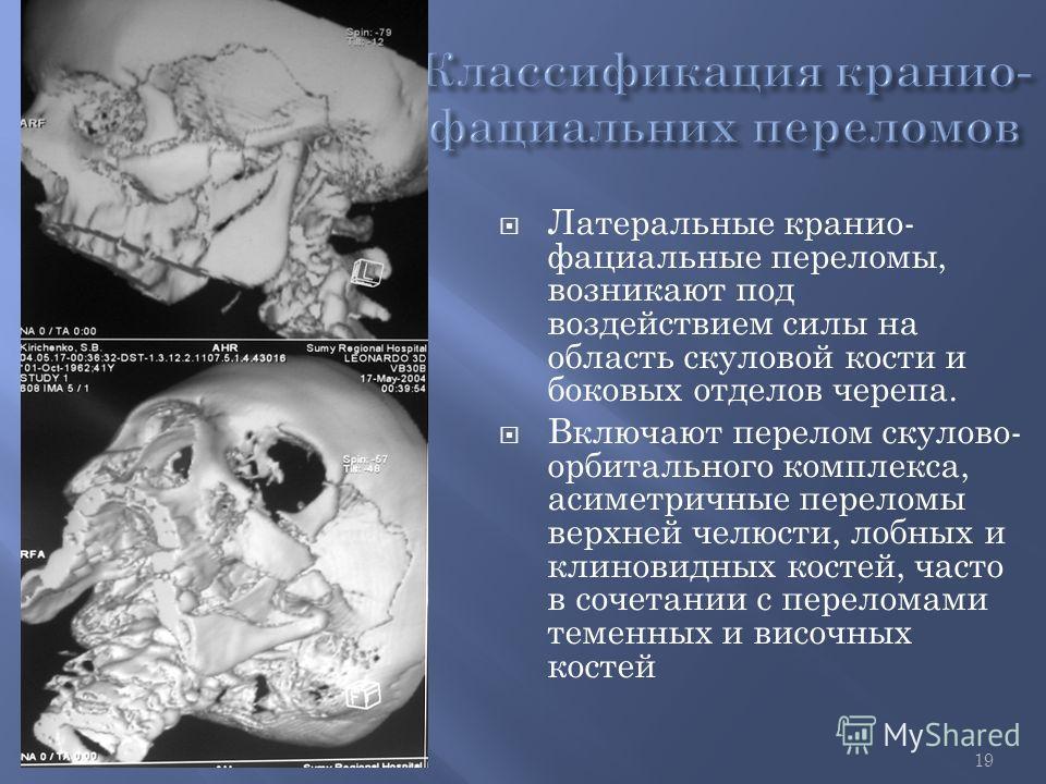 19 Латеральные кранио- фациальные переломы, возникают под воздействием силы на область скуловой кости и боковых отделов черепа. Включают перелом скулово- орбитального комплекса, асиметричные переломы верхней челюсти, лобных и клиновидных костей, част