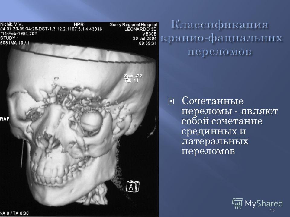 20 Сочетанные переломы - являют собой сочетание срединных и латеральных переломов