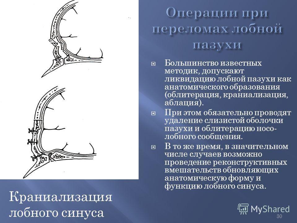 30 Большинство известных методик, допускают ликвидацию лобной пазухи как анатомического образования (облитерация, краниализация, аблация). При этом обязательно проводят удаление слизистой оболочки пазухи и облитерацию носо- лобного сообщения. В то же