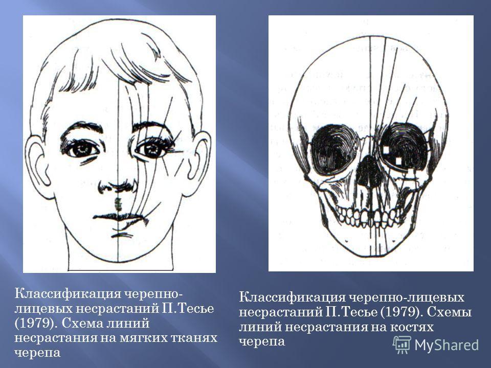 Классификация черепно- лицевых несрастаний П.Тесье (1979). Схема линий несрастания на мягких тканях черепа Классификация черепно-лицевых несрастаний П.Тесье (1979). Схемы линий несрастания на костях черепа