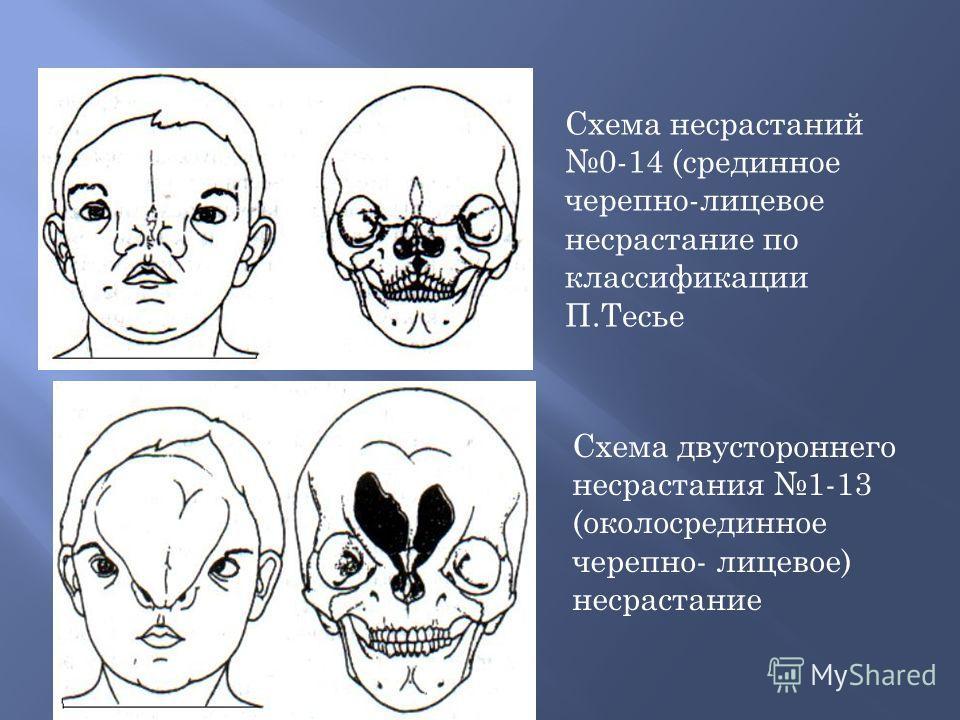 Схема несрастаний 0-14 (срединное черепно-лицевое несрастание по классификации П.Тесье Схема двустороннего несрастания 1-13 (околосрединное черепно- лицевое) несрастание
