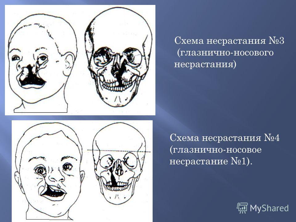 Схема несрастания 3 (глазнично-носового несрастания) Схема несрастания 4 (глазнично-носовое несрастание 1).