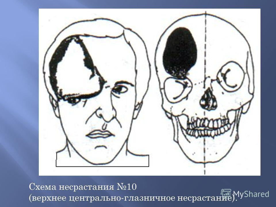 Схема несрастания 10 (верхнее центрально-глазничное несрастание).