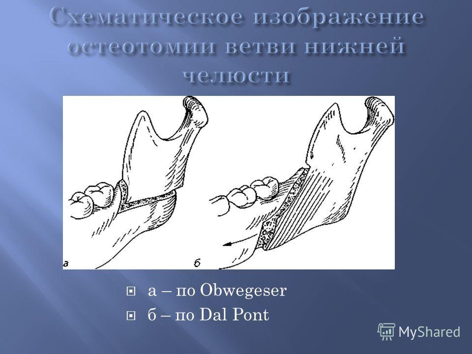 а – по Obwegeser б – по Dal Pont