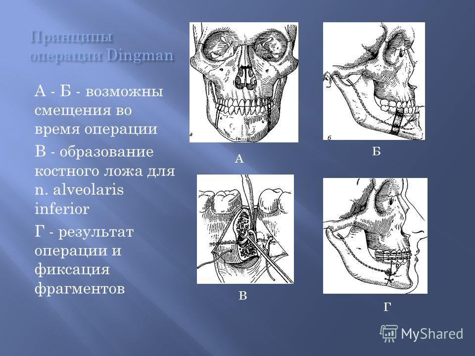 Принципы операции Dingman А - Б - возможны смещения во время операции В - образование костного ложа для n. alveolaris inferior Г - результат операции и фиксация фрагментов А Б В Г