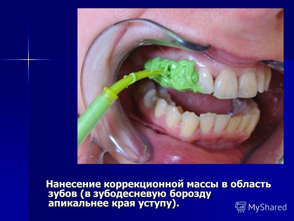 Нанесение коррекционной массы в область зубов (в зубодесневую борозду апикальнее края уступу). Нанесение коррекционной массы в область зубов (в зубодесневую борозду апикальнее края уступу).