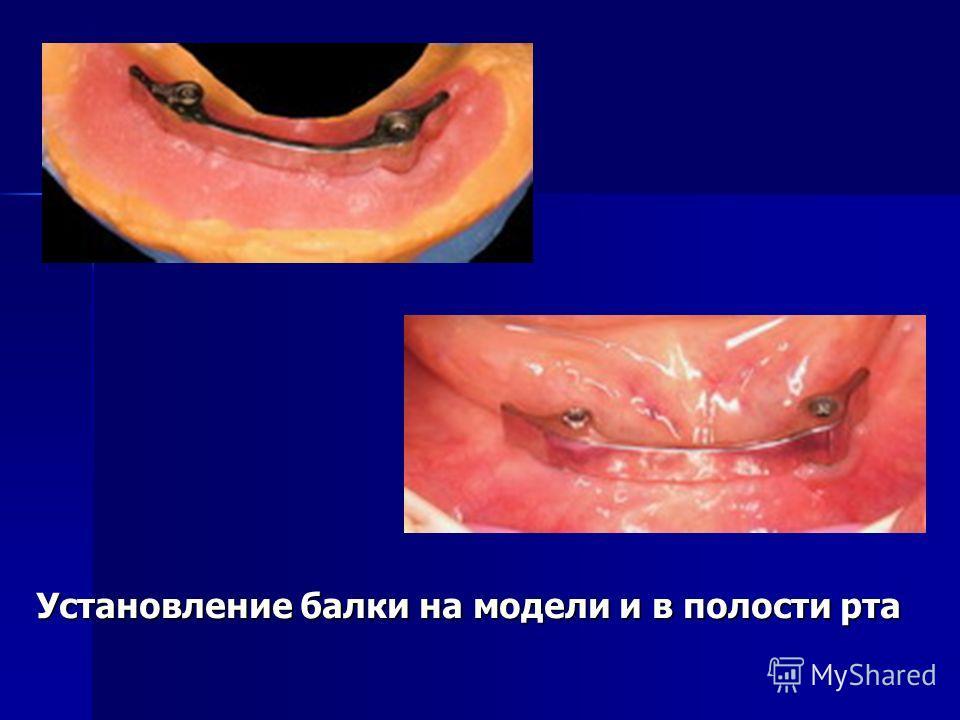 Установление балки на модели и в полости рта