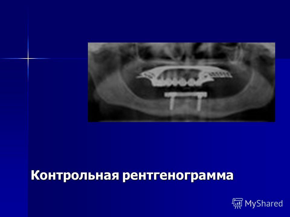 Контрольная рентгенограмма Контрольная рентгенограмма