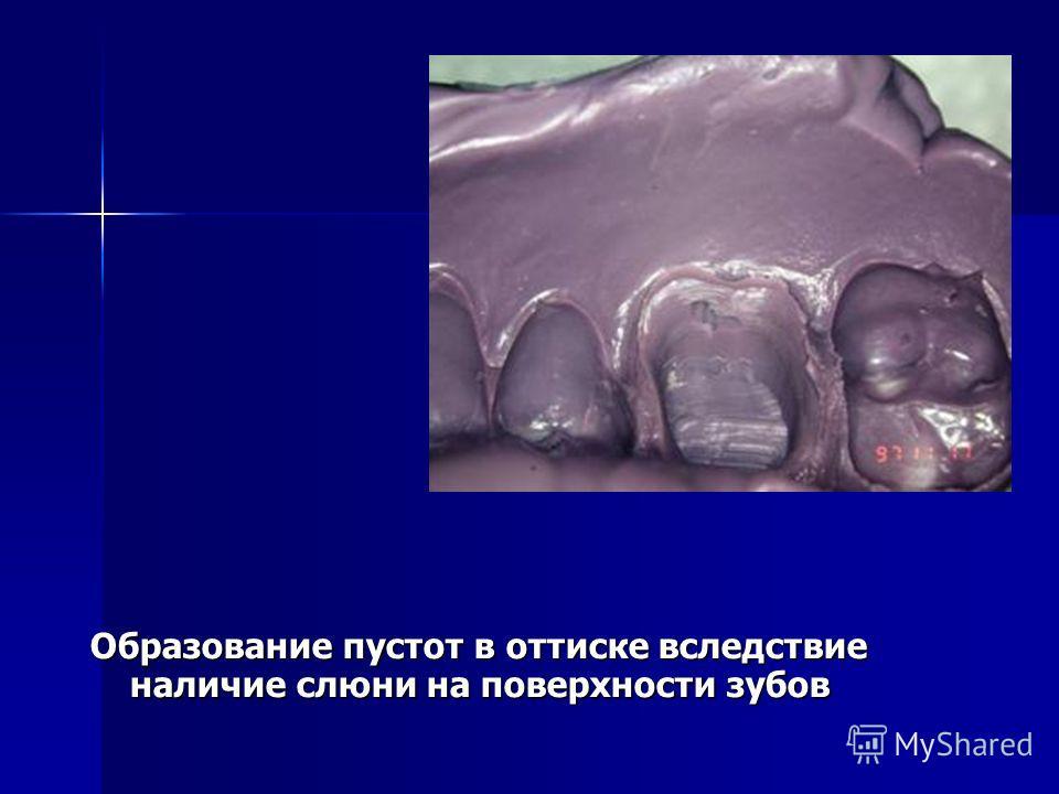 Образование пустот в оттиске вследствие наличие слюни на поверхности зубов