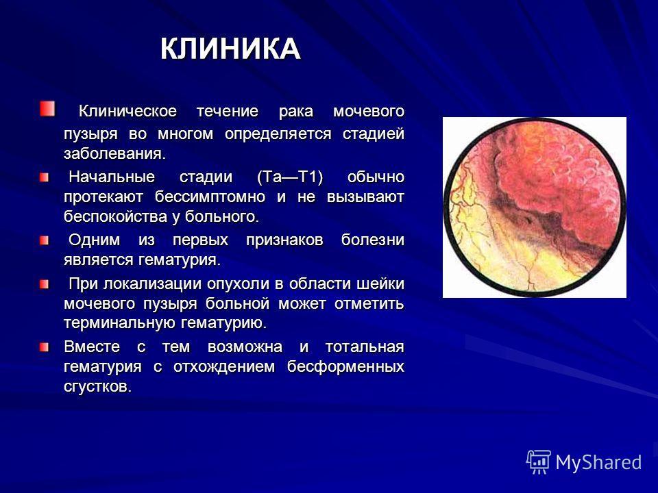 КЛИНИКА Клиническое течение рака мочевого пузыря во многом определяется стадией заболевания. Клиническое течение рака мочевого пузыря во многом определяется стадией заболевания. Начальные стадии (ТаТ1) обычно протекают бессимптомно и не вызывают бесп