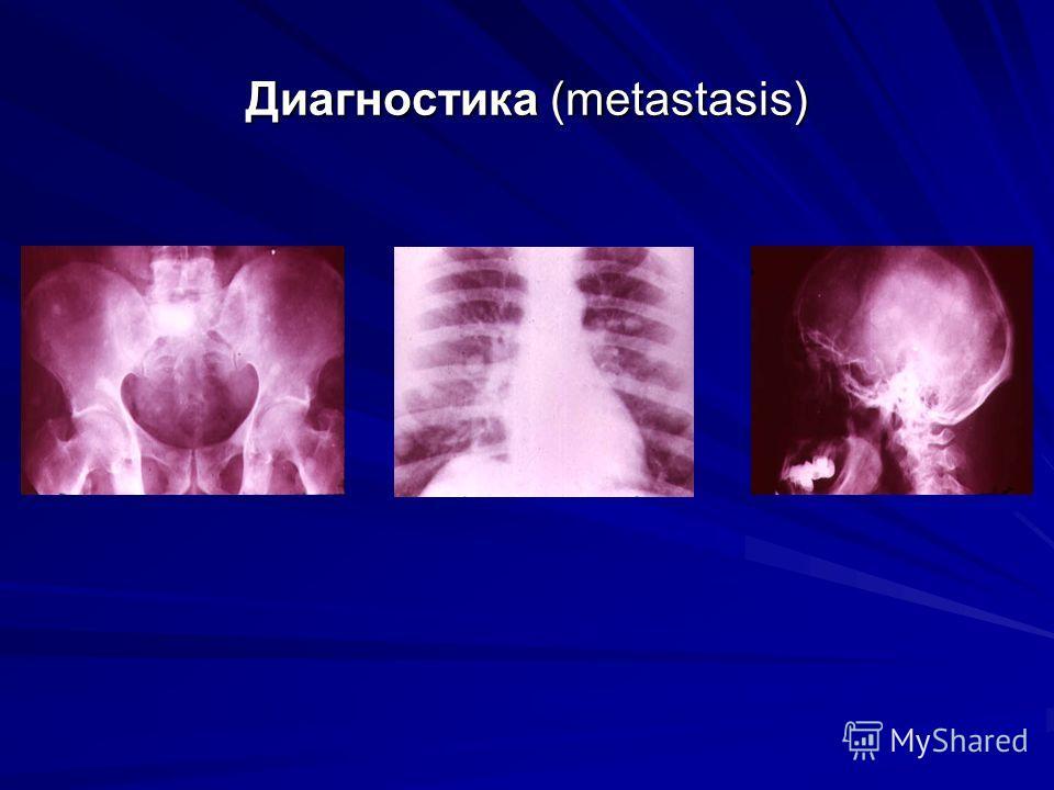 Диагностика (metastasis)