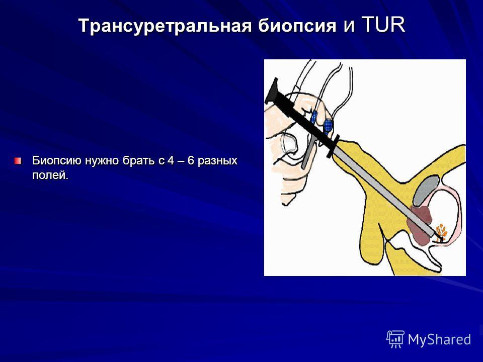 Трансуретральная биопсия и TUR Биопсию нужно брать с 4 – 6 разных полей.